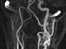 Neuwelt:  Ferumoxytol CE MR Angiography of the supra-aortic arteries (click to enlarge)