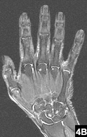 MRI Protocols   OHSU