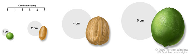 Medical Illustration of Tumor Sizes compared to everyday items, including a pea, a peanut, a walnut, and a lime