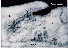 An electron micrograph shows tight passages between the endothelial cells that make up the blood-brain barrier