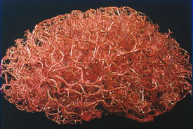 A 3D brain-shaped sculpture shows the intricate blood vessel structure of the human brain