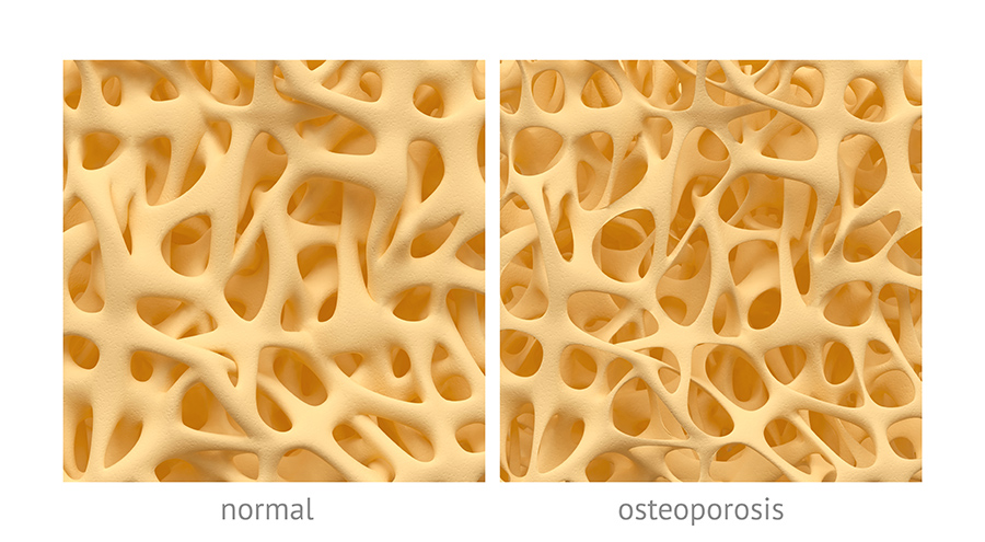 Simulated magnified normal versus osteoporotic bone