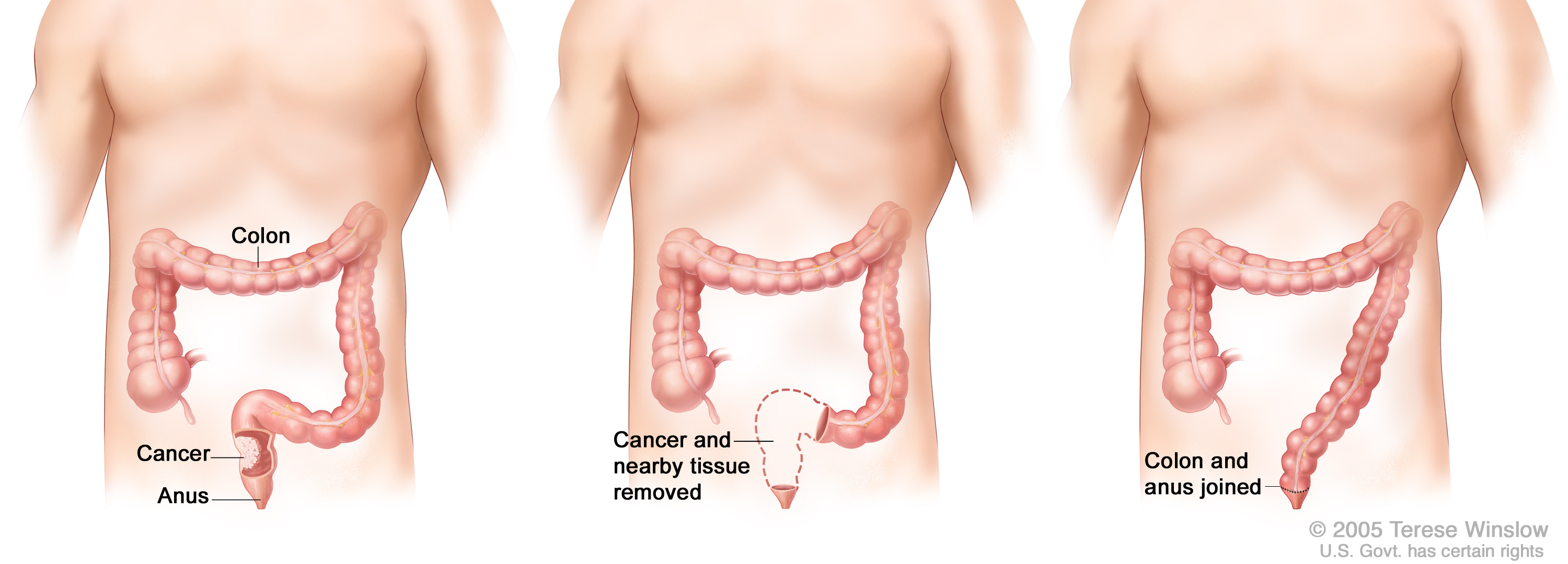 Colorectal Cancer Diagnosis And Treatment Knight Cancer Institute Ohsu