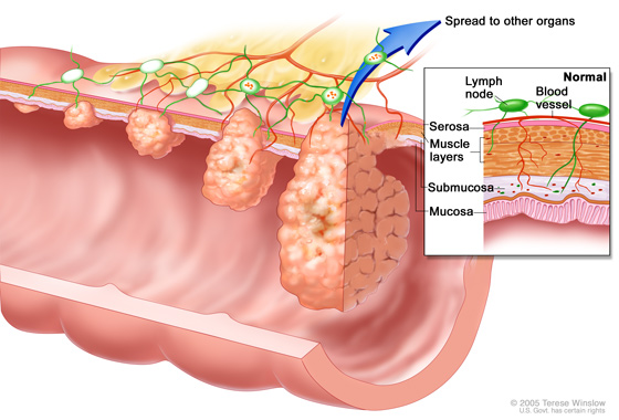 Colorectal tumor sizes, which also correspond to cancer stages. Inset box showing inner to outermost layers of the colon including: mucosa, submucosa, muscle layers, and serosa.