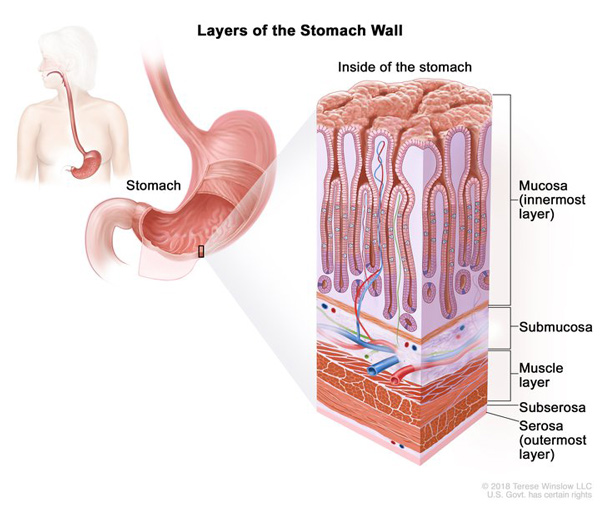 Medical illustration of the layers of the stomach wall, with inset showing detail including (from innermost to outermost layer) the mucosa, submucosa, muscle layer, subserosa, and serosa.
