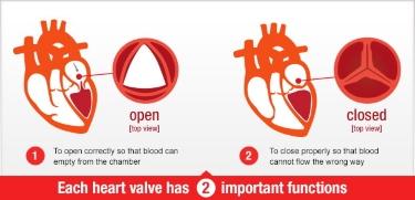 Heart Valve Program Treatment Options   Knight ...