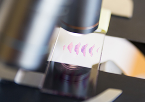A microscope looking at a skin tissue slide.