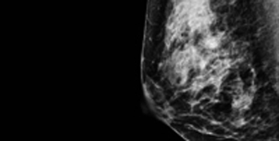 Heterogeneous Mammogram for Radiology