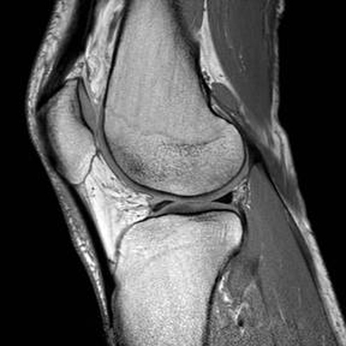 MSK Knee Image for radiology