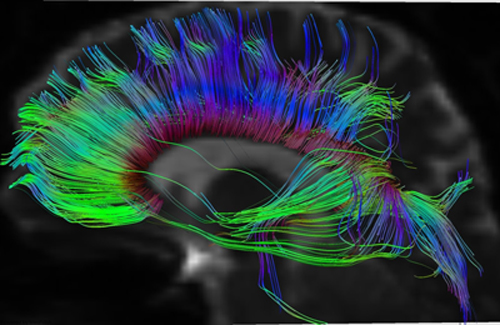 Diffusion Tensor Tractography MRI Image for Radiology
