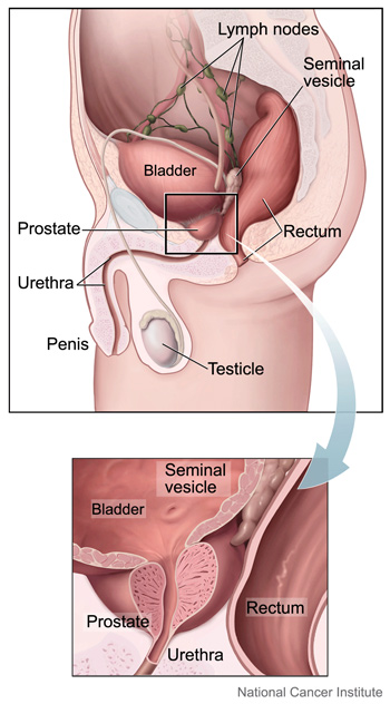 Medical illustration of the prostate and nearby organs, by Alan Hoofring