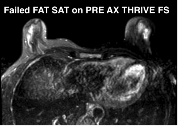 MR Breast Pre AX eTHRIVE FS - example of failed FS