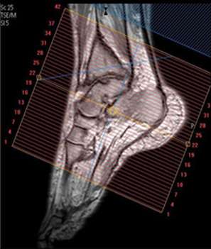MR Ankle WO Radiology Protocol image 2