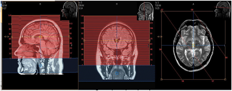 MR Brain Frameless Stereotactic WO, W or WWO Neuro Protocol
