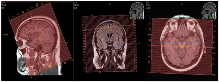 MR Protocol Epilepsy Seizure Brain for Ingenia in Radiology