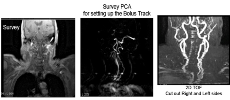 MRA Neck WWO Neuro Radiology Protocol image 2 showing MR Techs where to trigger the bolus track
