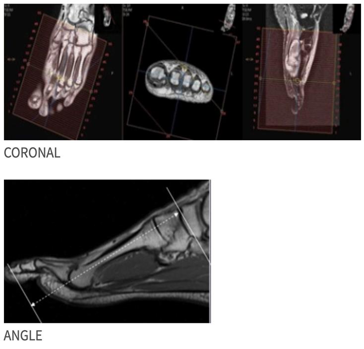 MRI Toe WO or W/WO MSK Protocol | OHSU