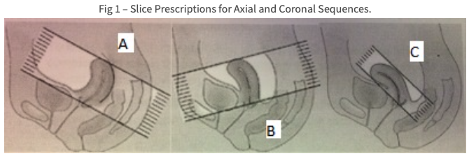 MR Bayer Asteroid Research Protocol Image Fig. 1- Slice prescriptions for Axial and Coronal sequences