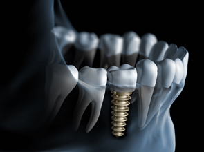 State-of-the-Art Dental Implants at the OHSU Dental Clinics