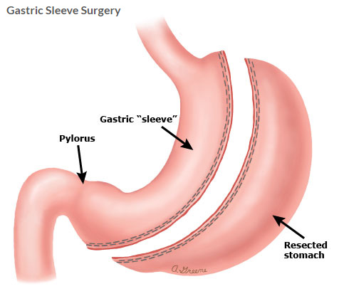 Medical illustration of Gastric Sleeve Surgery