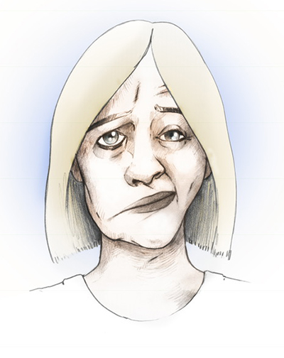 Symptoms of facial nerve disorders can include loss of voluntary facial control.