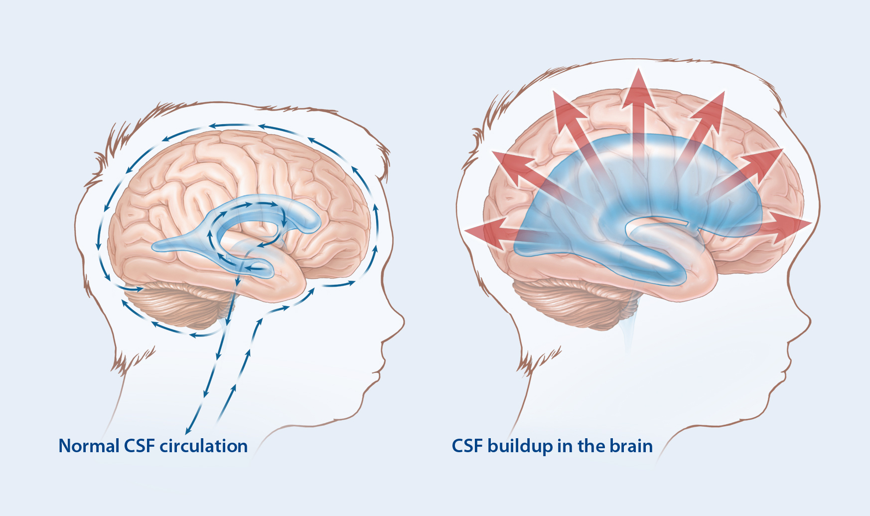 Illustration comparing normal central spinal fluid circulation with central spinal fluid buildup on the brain