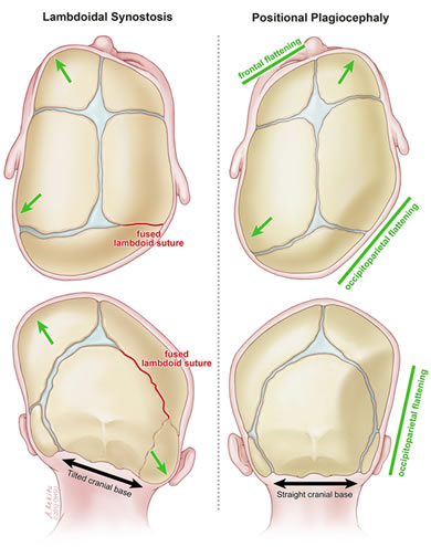 Positional Plagiocephaly Flattened Head Doernbecher