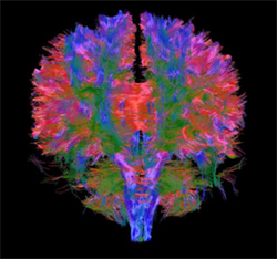 White matter tracts from 3T in vivo human diffusion imaging, found in a MRI scan of the brain