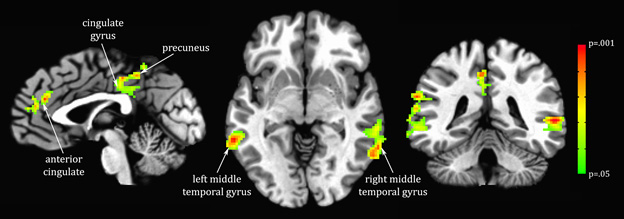 Brain image scan showing three regions of the brain where grey matter density is related to a metabolite