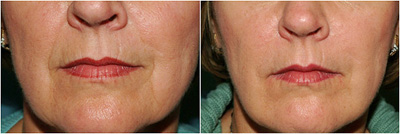 A before and after photo of facial treatments