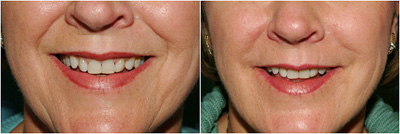 Facial treatments before and after image of lower face results