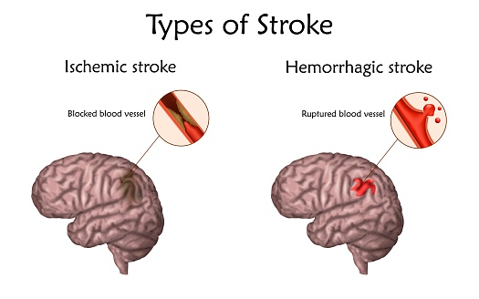 This diagram illustrates the two types of stroke: Ischemic, caused by a blockage; and hemorrhagic, caused by a ruptured blood vessel.