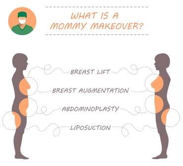 Illustration showing procedures that may be part of a Mommy Makeover: Breast Lift, Breast Augmentation, Abdominoplasty, and Liposuction.