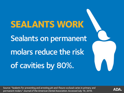 OHSU Dental Clinics Sealants