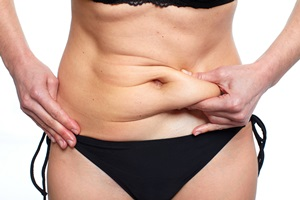Photo of a woman pinching a roll of tummy fat between her fingers
