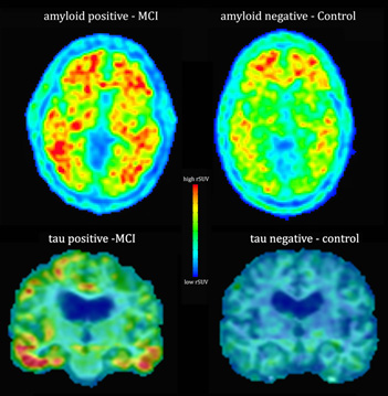 PET scan of the brain showing amyloid plaques and neurofibrillary tangles associated with Alzheimer's disease