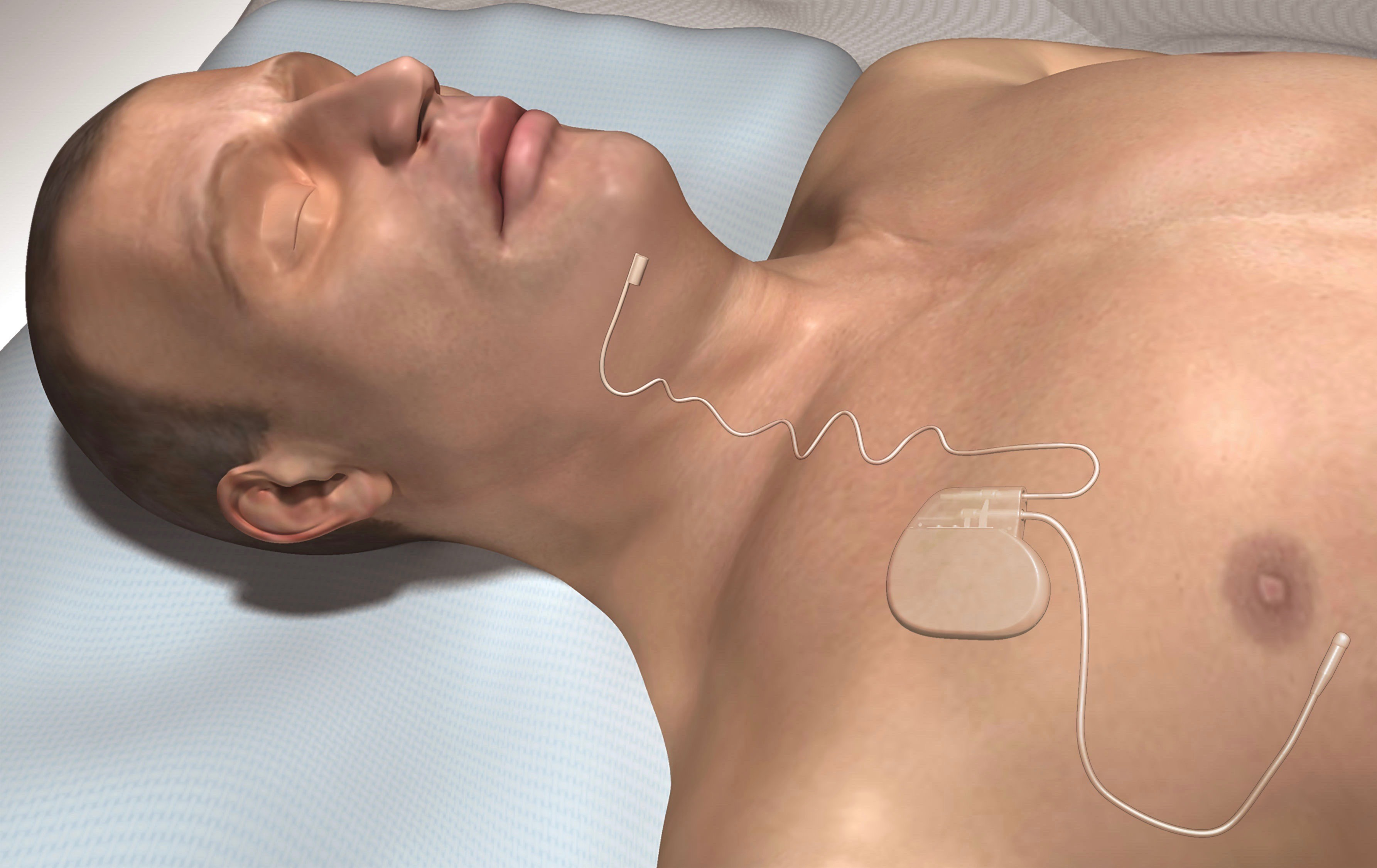 Illustration of a sleeping person with an Inspire implanted device to help improve sleep