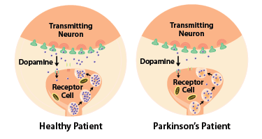Diagram: Parkinson's patients have less dopamine. Illustration Source: National Institute of Environmental Health Sciences