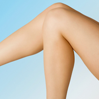 Microphlebectomy surgery removes problematic large leg veins.