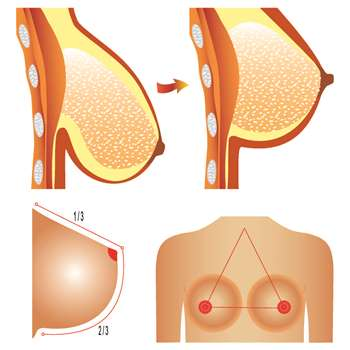 Medical illustration showing the before and after of a breast lift (mammoplasty)