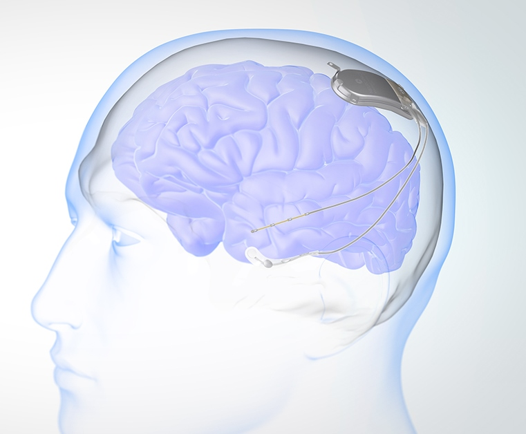 Courtesy of Neuropace. OHSU researchers helped develop an implantable device that prevents or stops seizures - RNS, responsive neurostimulation