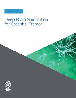 OBI DBS deep brain stimulation for essential tremor patient guide brochure front cover