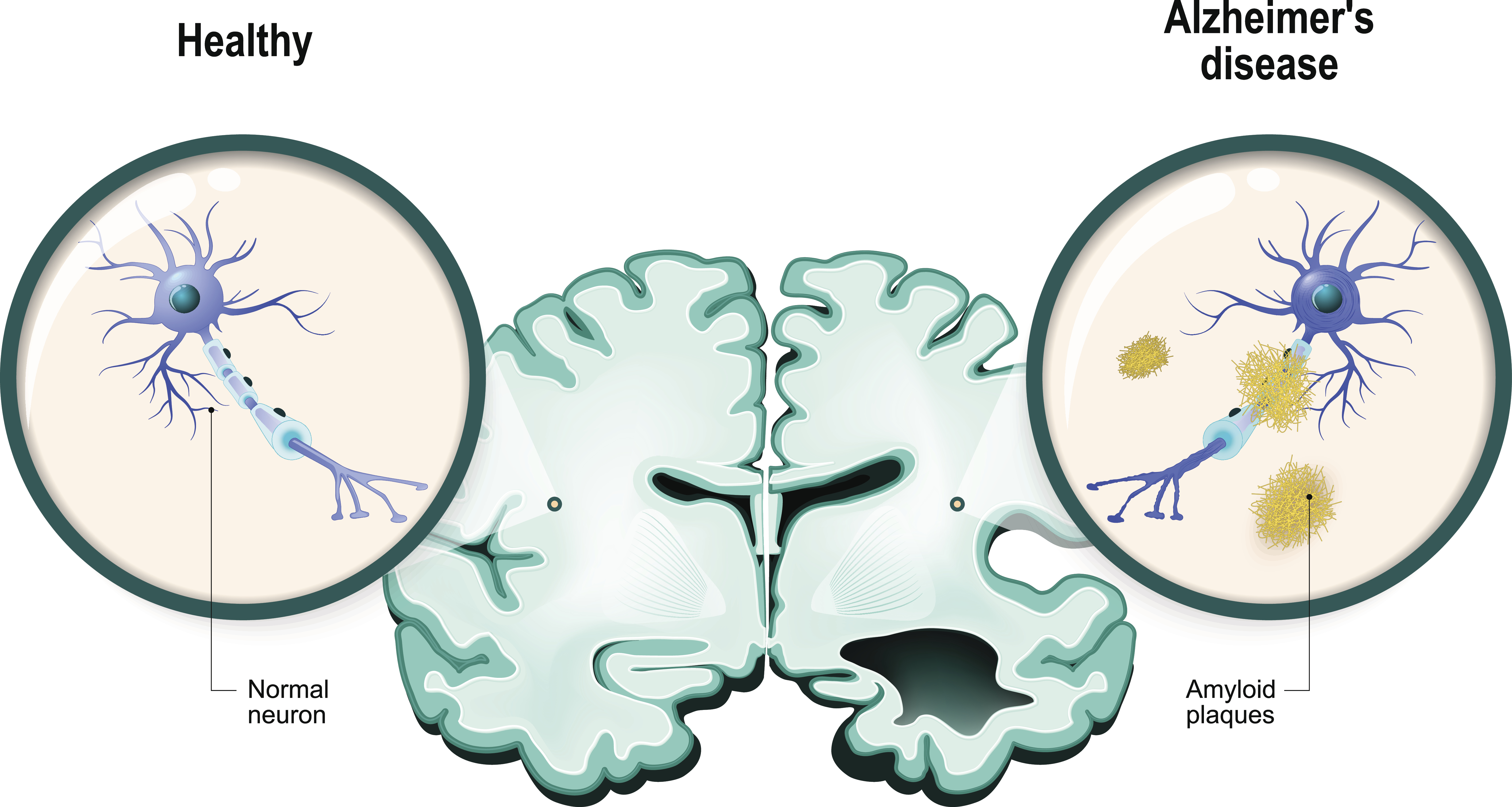 Medical Illustration of brain and neurons: Healthy vs. Alzheimer's disease
