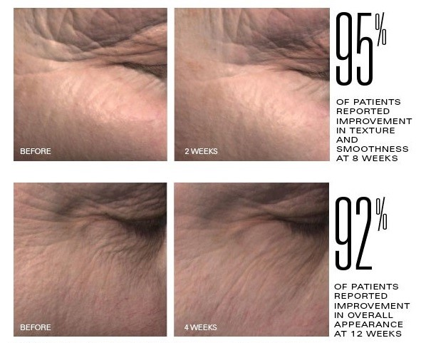 ZO Growth Factor Serum results