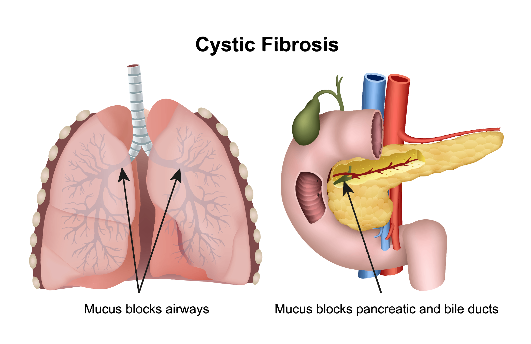 A diagram of the human lungs and pancreas that illustrates mucus blockage in patients with cystic fibrosis.