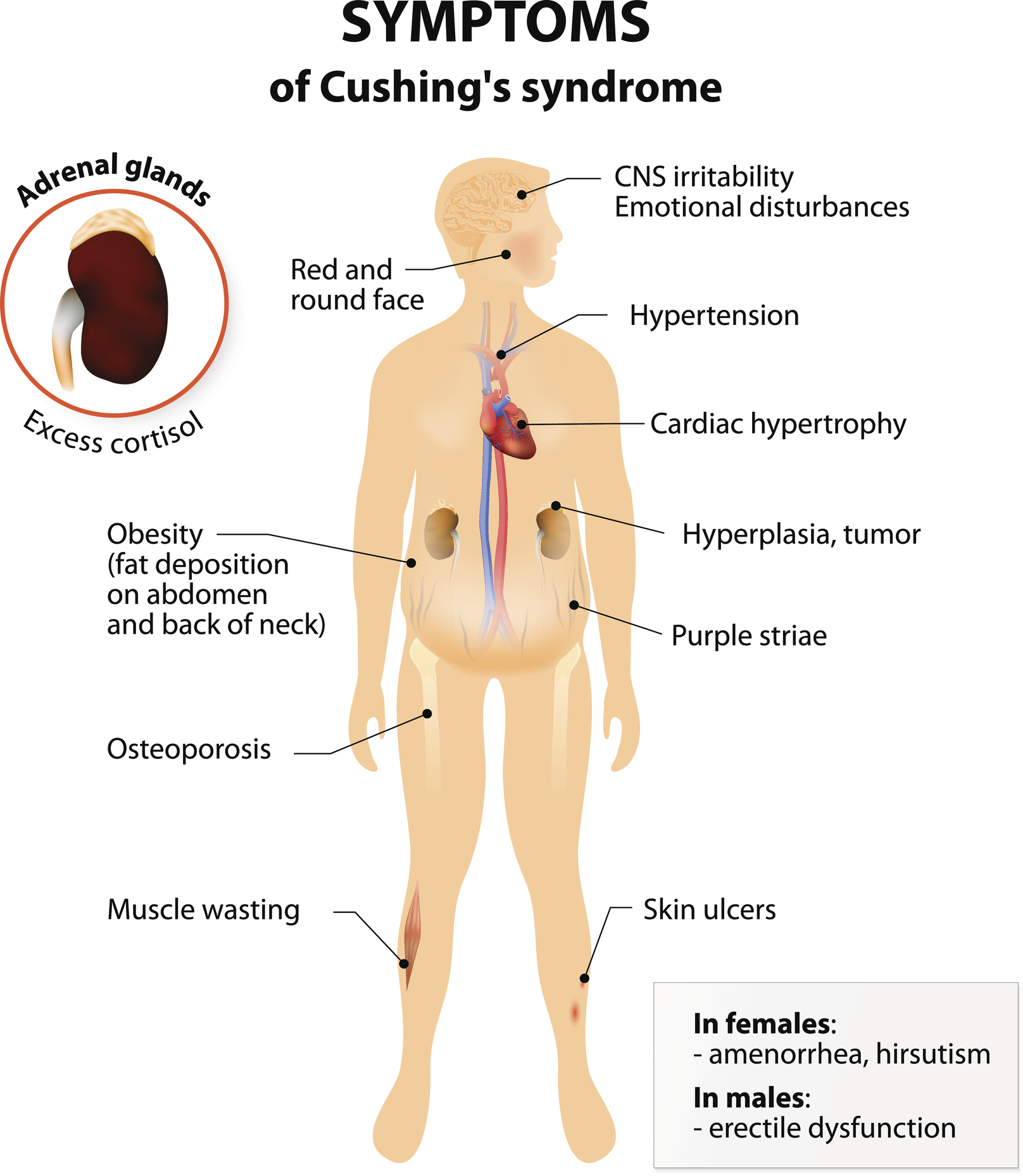 Pituitary Center | Diagram of Cushings Syndrome (Cushing's Syndrome) symptoms