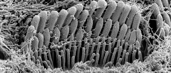 Electron microscopy shows stair-stepping form of mature cochlear hair bundles
