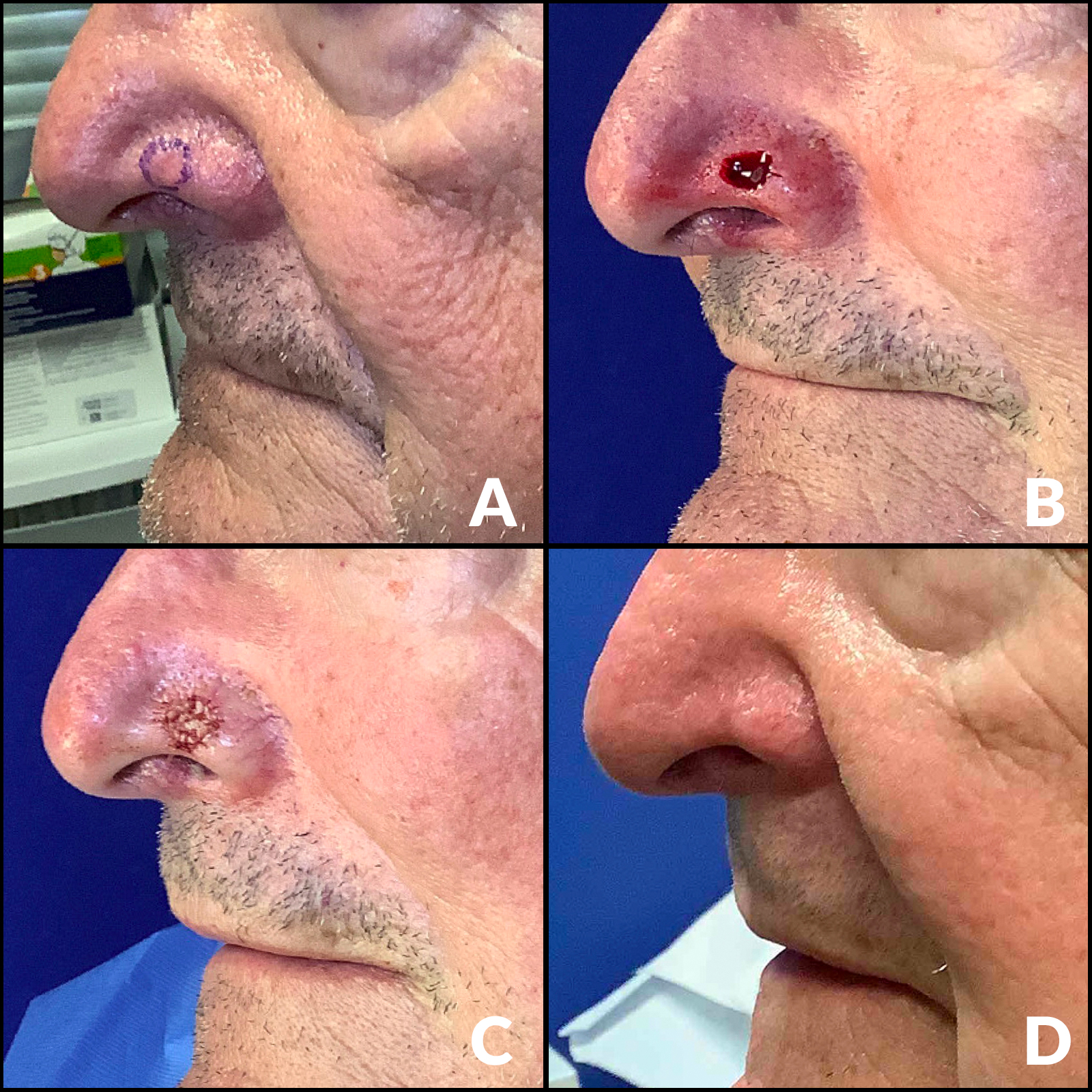 A comparison collage of images for a Mohs surgery patient